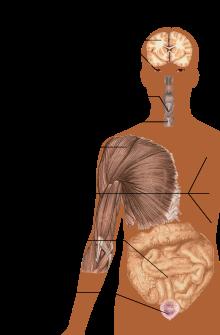 leziuni articulare cu scleroză multiplă
