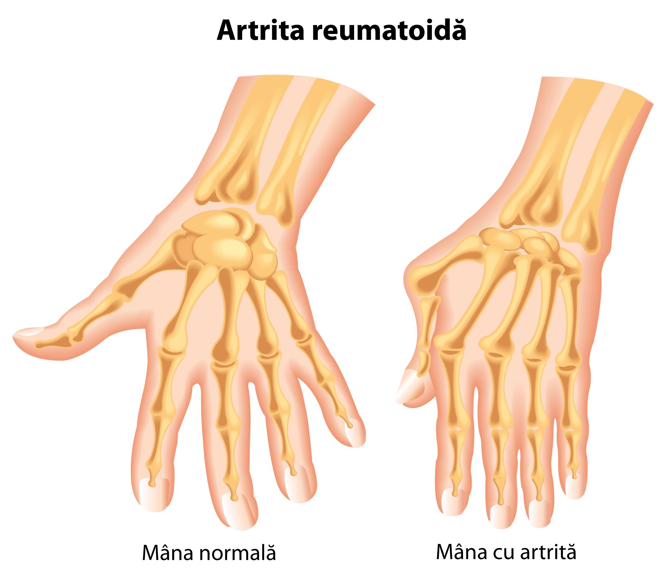 articulația degetelor doare simptomele