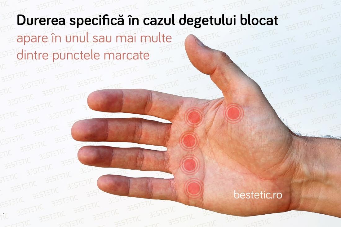 durerile din coate provoacă tratament Ce este condroitina glucozamină