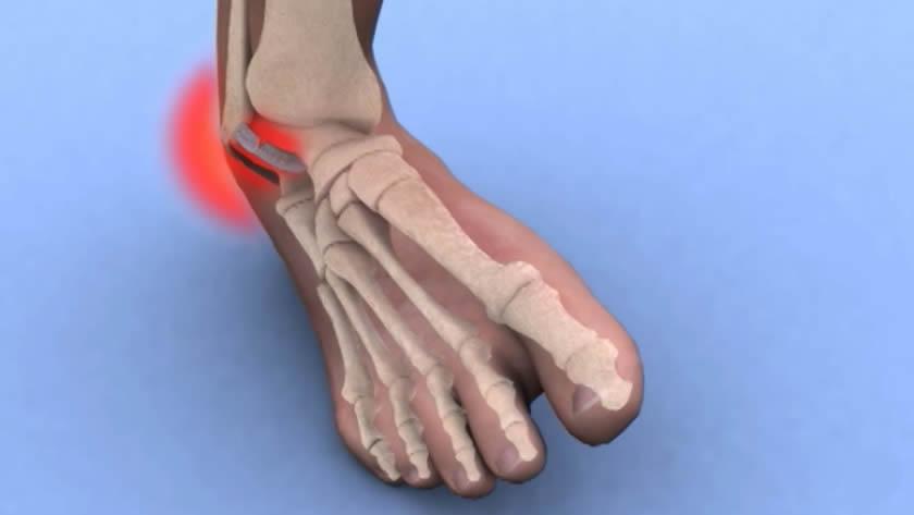 gelatină pentru dureri la nivelul articulațiilor genunchiului unghiile de entorse articulare