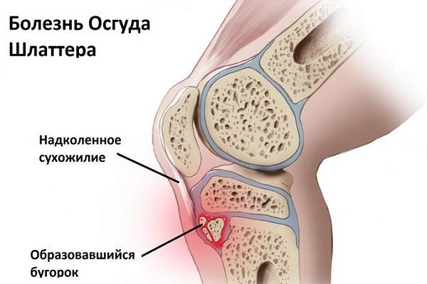 plante medicinale pentru tratamentul articulațiilor ligamentelor și oaselor medicamente homeopate pentru articulații