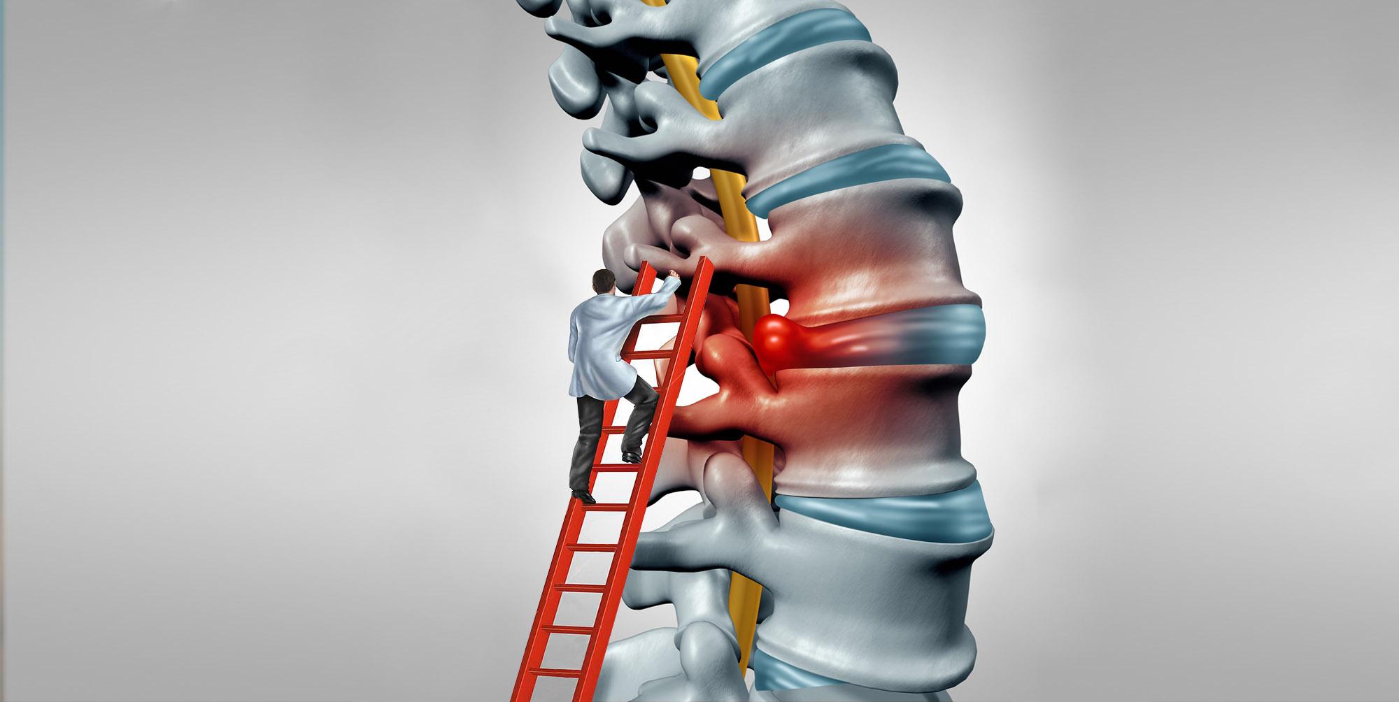 ce unguent tratează osteochondroza cervicală cum să alinați umflarea gleznei cu artrita