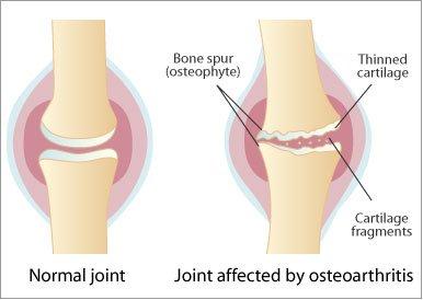 ameliorarea durerii pentru inflamația articulației umărului