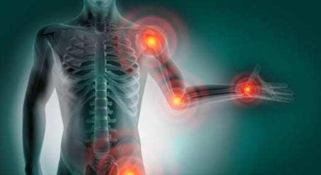reumatism articular modul de tratament fractură a articulației umărului