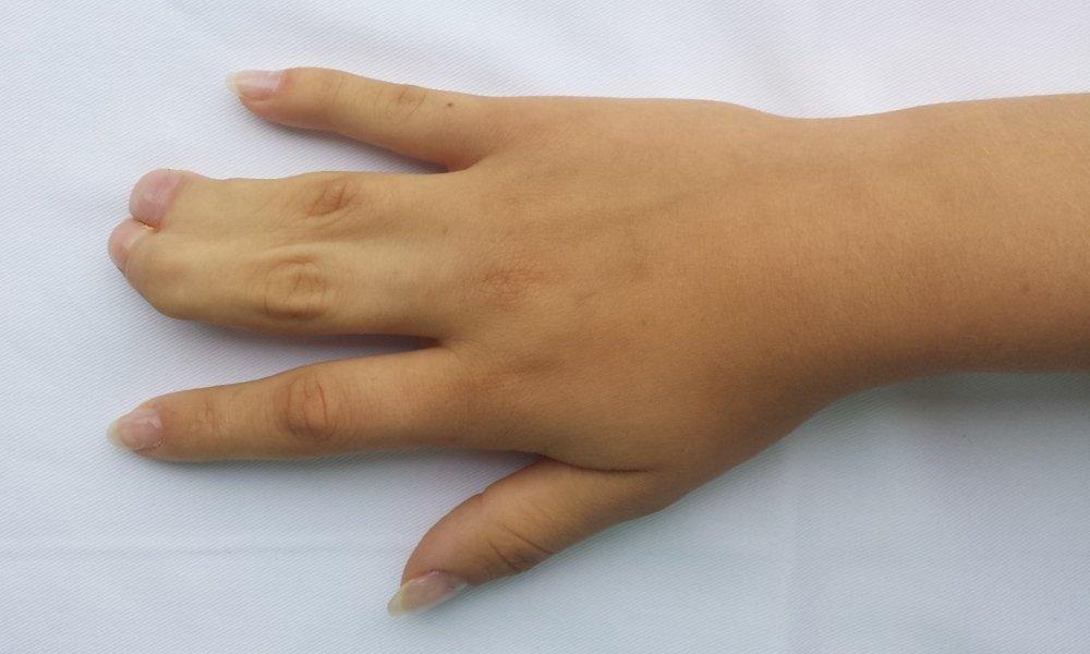 cum să tratezi o articulație pe deget Egipt cu tratament comun