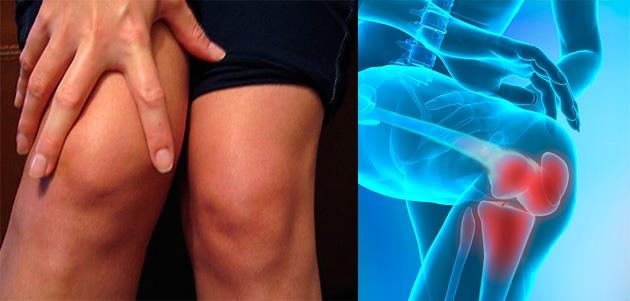 plante medicinale pentru tratamentul articulațiilor ligamentelor și oaselor ciment până la articulația genunchiului