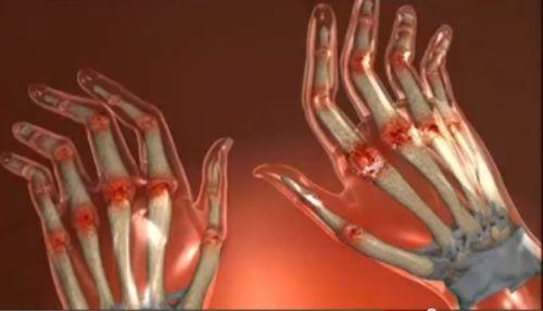 Crema IVPS pentru durerile articulare