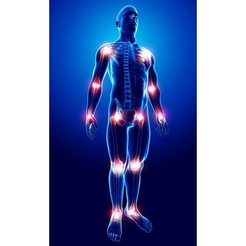 dureri de picioare asociate cu boli ale articulațiilor