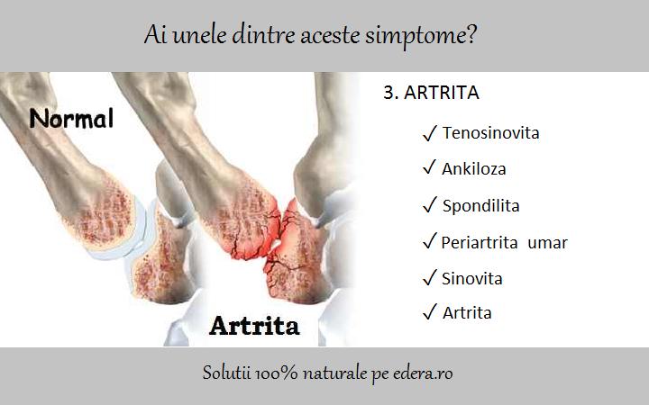 periartrita tratamentul articulațiilor umărului și simptomele toate coastele și articulațiile doare