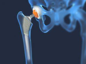 artroza articulațiilor mari este