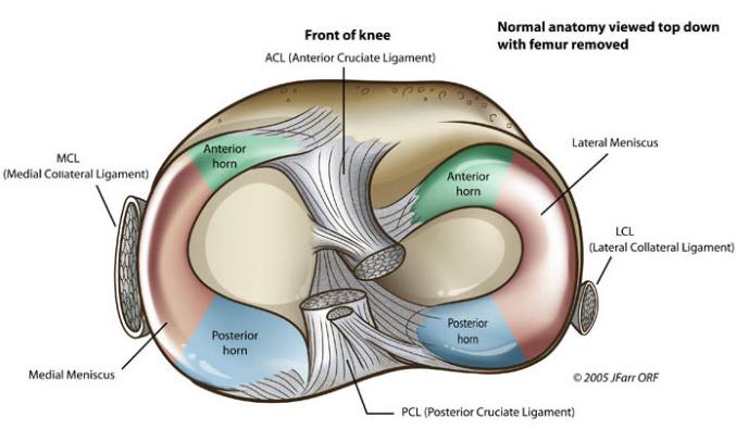 Recuperarea si revenirea in activitate dupa sutura de menisc