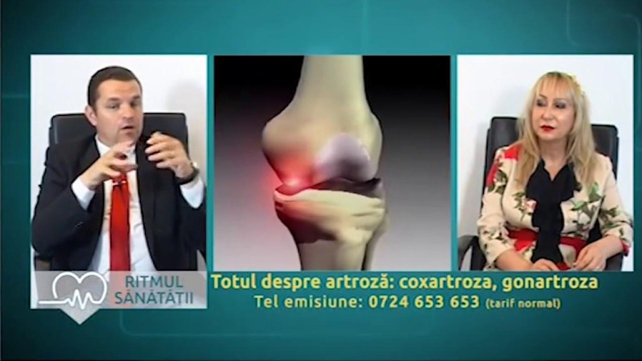 tratament cuprinzător de artroză