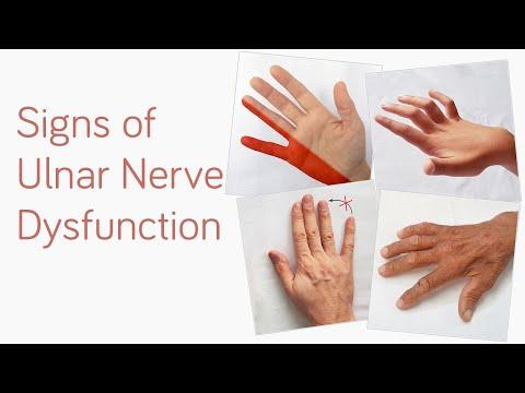 tratamentul articulațiilor tanganzi inflamație și durere în articulațiile degetelor