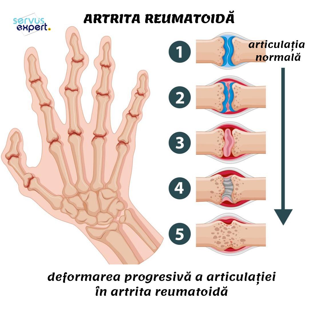 artrita pe degete și dureri dureri la nivelul articulațiilor mâinii și doare