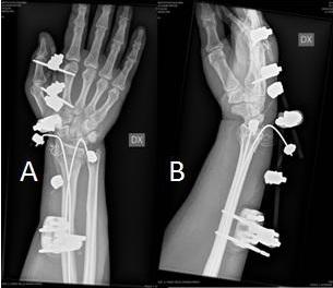 din anghinare Ierusalim pentru tratamentul artrozei durere în articulațiile degetelor mici ale mâinilor