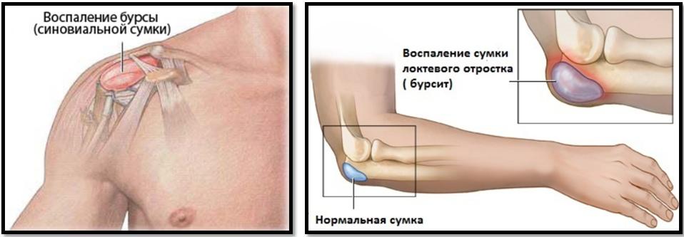 inflamația simptomelor articulației cotului și tratament inflamația sacului sinovial în articulația șoldului