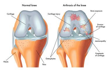 boli la genunchi