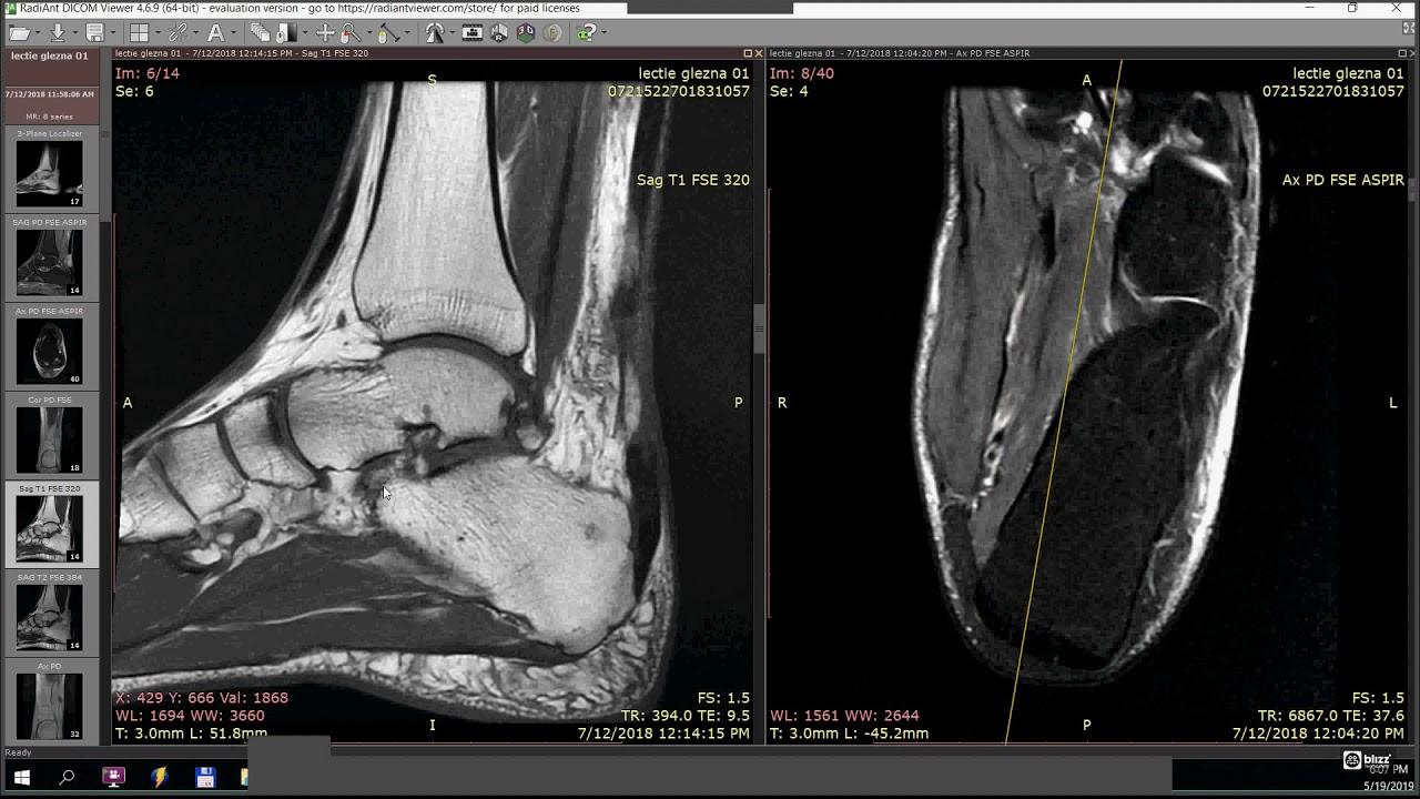 Artrită idiopatică juvenilă - Wikipedia