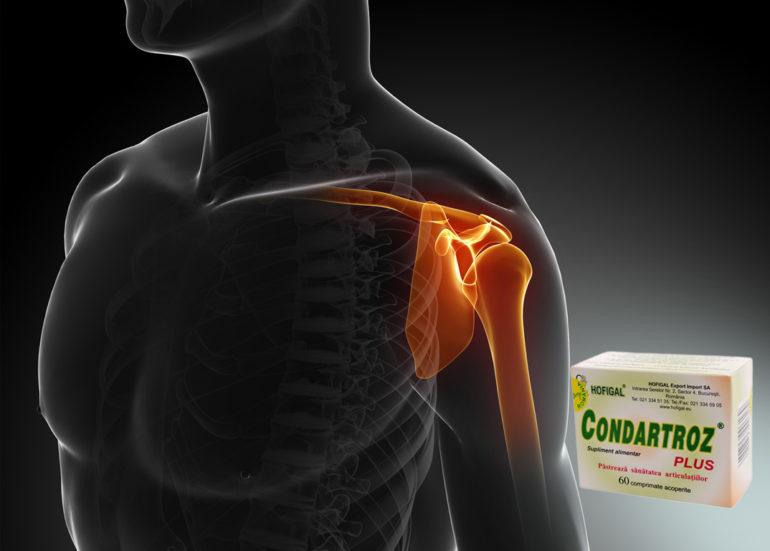 vitamine cu condroitină și glucozamină dureri la nivelul genunchiului partea interioară