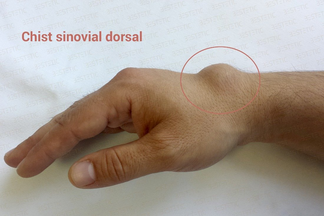 durere în articulația încheietura mâinii stângi tratament. dureri musculare și articulare