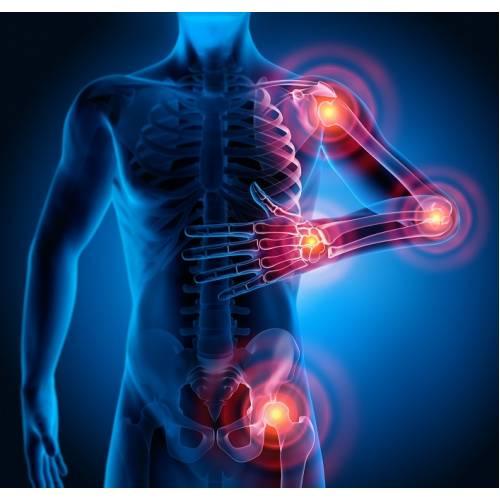 artrita alergică a articulațiilor încheieturii