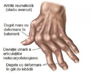 leziuni articulare sternoclaviculare