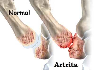 artrita degetului mare provoacă tratamentul stadiului inițial al artrozei umărului