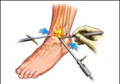 dureri musculare și articulare cu anemie