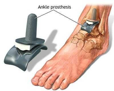 Semne ale artrozei deformante a articulației gleznei