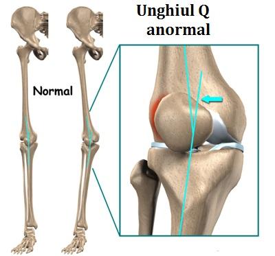 articulații cremă pentru picioare artrita purulentă a simptomelor articulației umărului