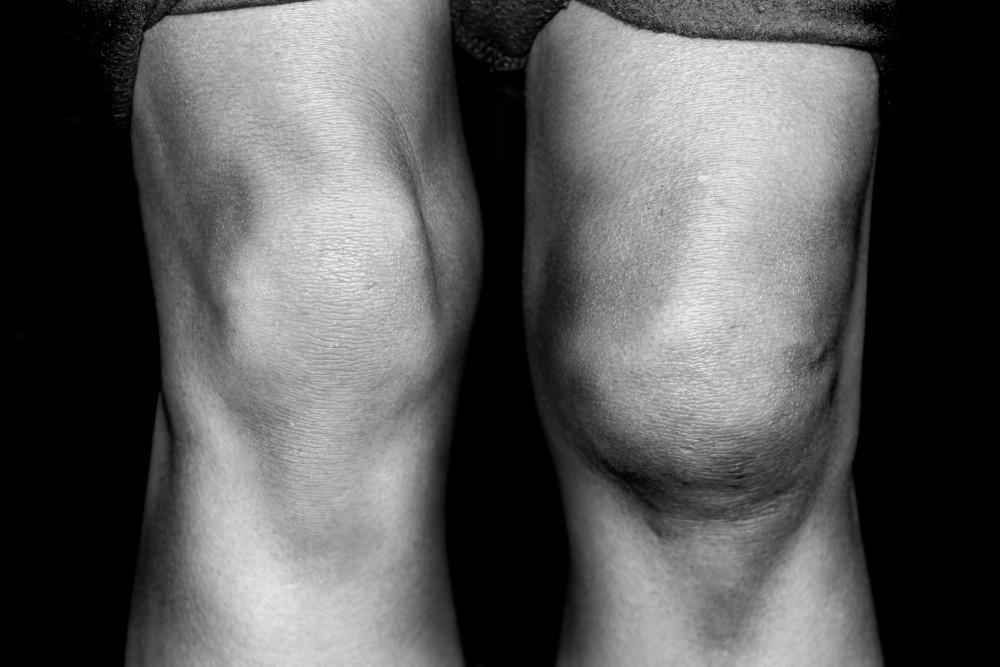 artroza osteofitoza a arcadelor ruperea buzei articulației umărului cum să se trateze