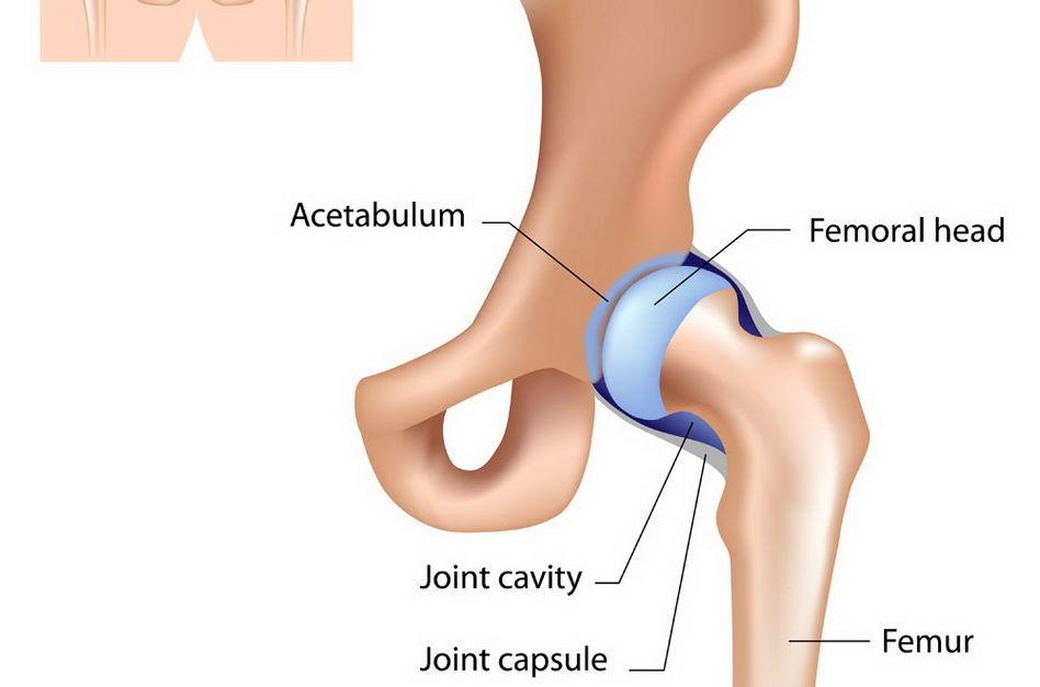 artroza prognosticului simptomelor șoldului producător de unguente de artropant