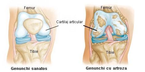 artroza progresivă a genunchiului artroza în articulațiile tarsului