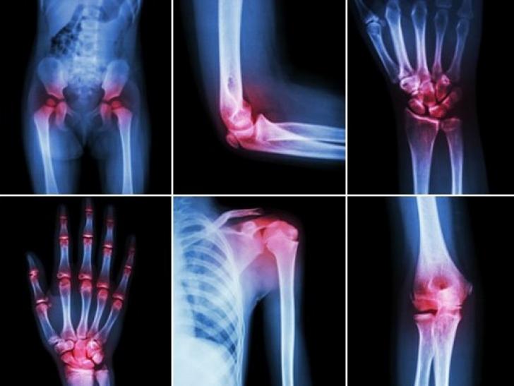 artroza sau artrita care este tratamentul articulația degetelor doare