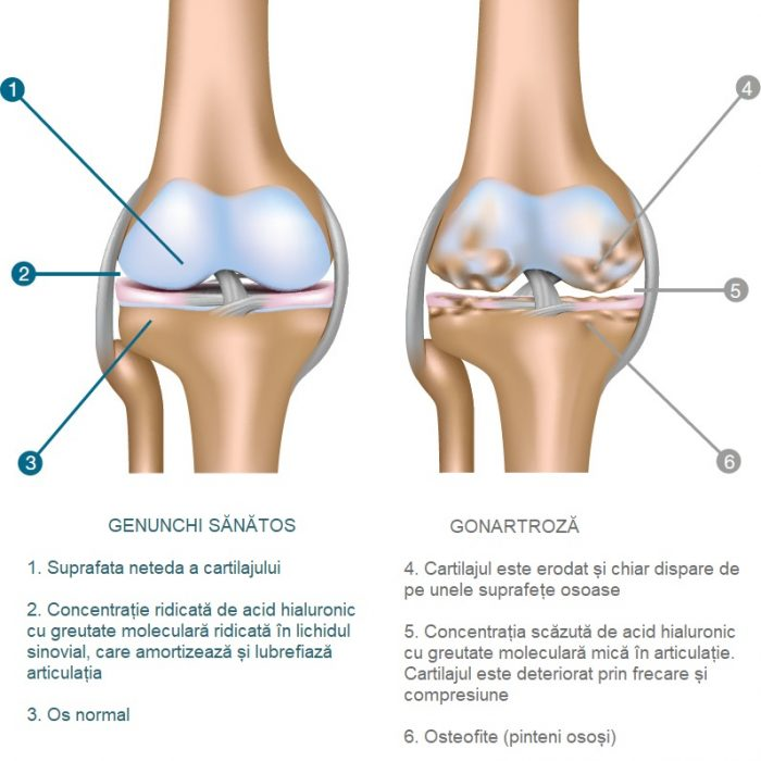 Totul despre artrita genunchiului - Simptome, tipuri, tratament   tehnicolor.ro