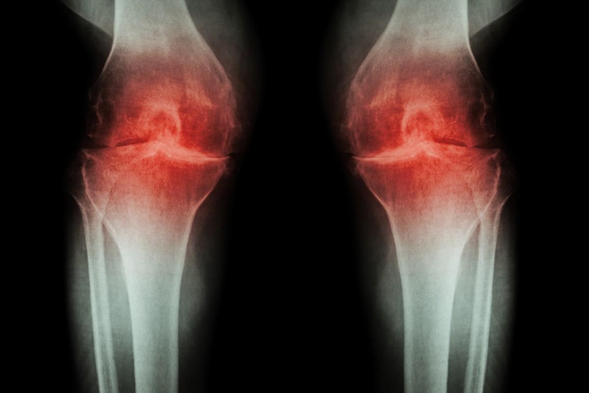 retete tratament pentru artroza artroză articulară acută
