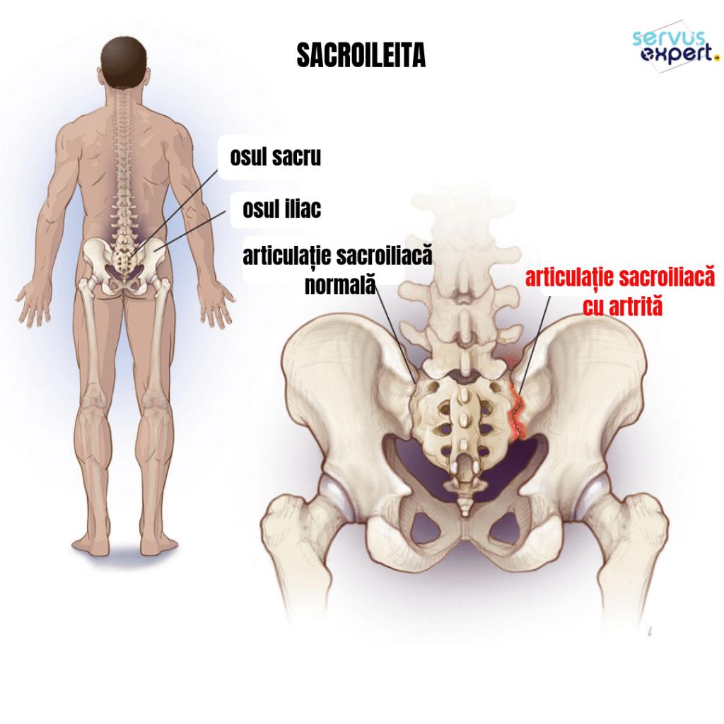 Articulația șoldului doare în timp ce aleargă. Preparate antireumatice pentru articulații