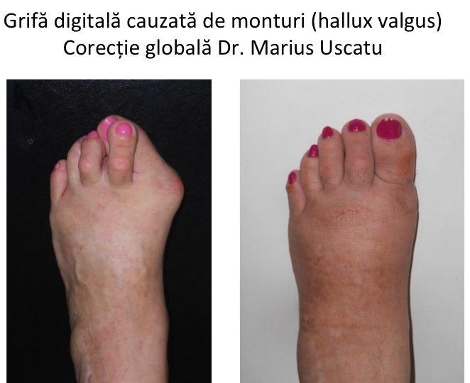 deformări ale degetelor de la picioare cu artrită gonartroza articulației genunchiului cum să tratezi