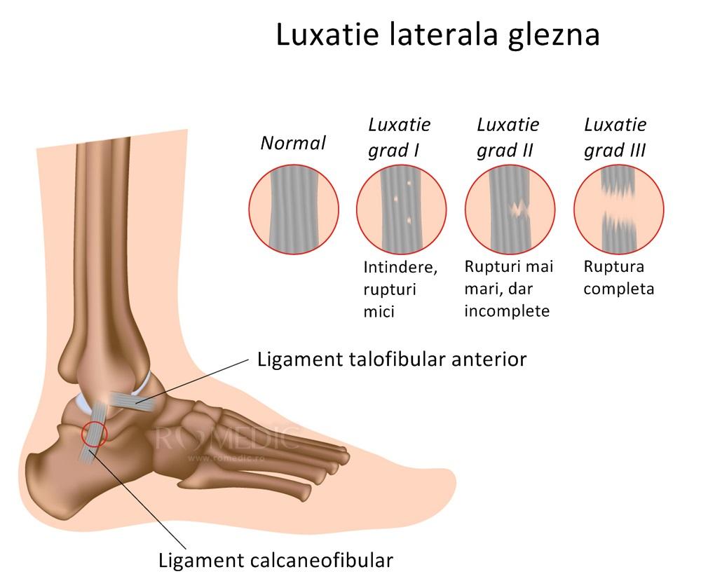 tratament pentru boala gleznei cum se tratează artroza artroza umărului