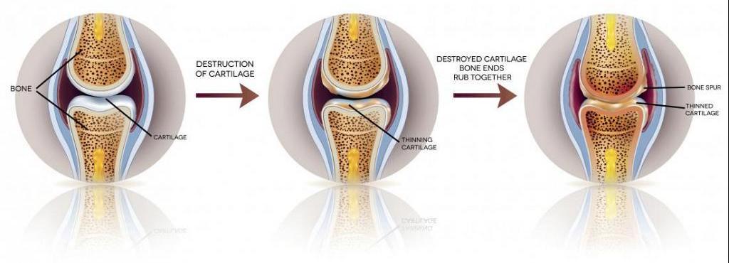 tratamentul artrozei yoshkar-ol Fac clic pe articulații decât pentru a trata