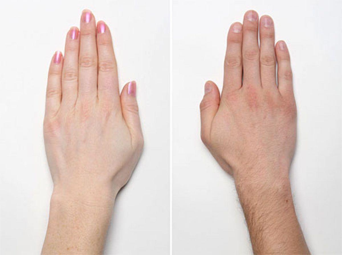 Articulațiile degetelor inflamate unguent tratament. Cum se manifesta artroza la nivelul mainilor?