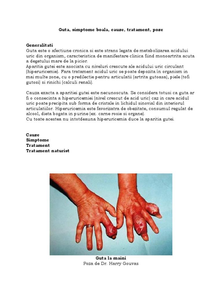 boli articulare la faraon cum se tratează artroza genunchiului 1 grad