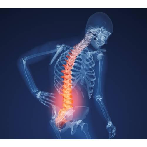 boli purulente ale chirurgiei oaselor și articulațiilor tratamentul artrozei la încheietura posttraumatică