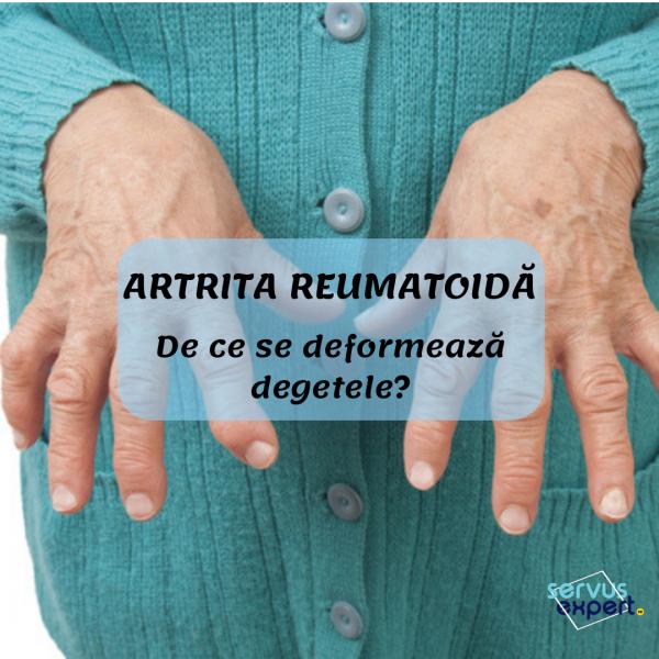 deformarea și durerea articulațiilor degetelor refacerea ligamentului colateral medial al șocului