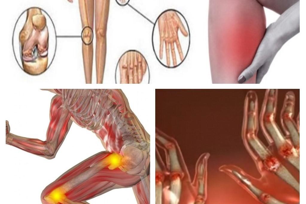 Artrita – ce este, cauze, simptome si tratament