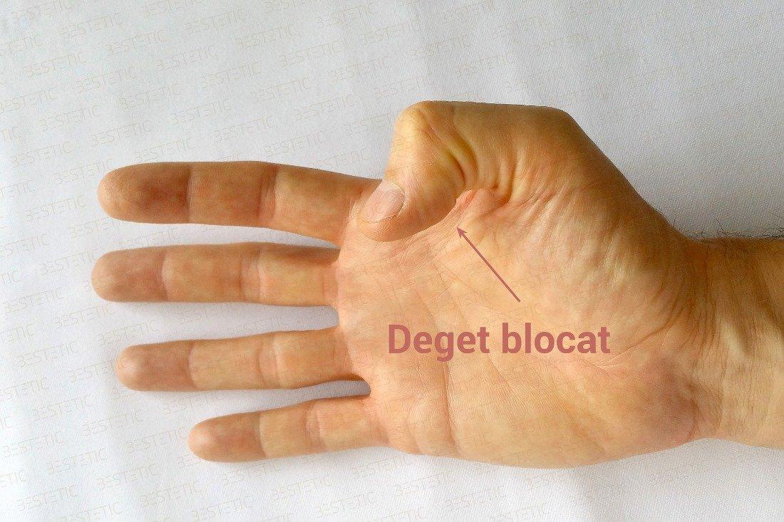 Articulația degetului arătător doare ce este