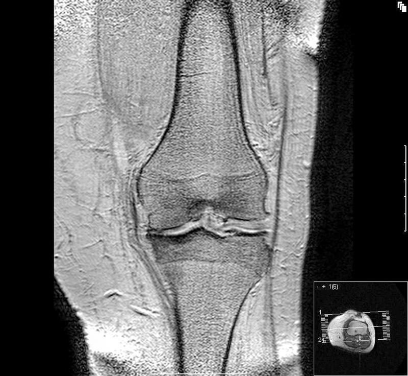 ce este mai bine pentru artroza articulațiilor tratament articular artra
