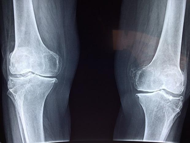 dureri articulare peste călcâie