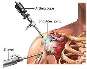 cum se tratează artroza artroza umărului alergii inflamatii articulare