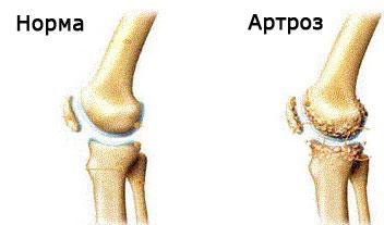 Boli konovalov s.c ale coloanei vertebrale și articulațiilor - Fractură a articulației genunchiului